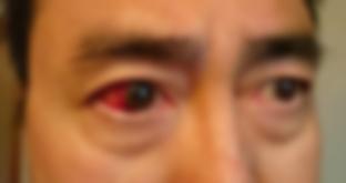隻眼(せきがん)のグール